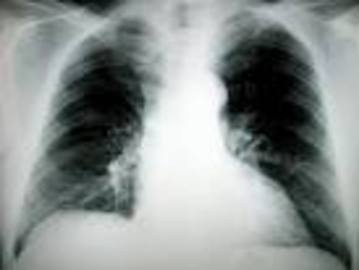 How To Treat Small Cell Lung Cancer Lung