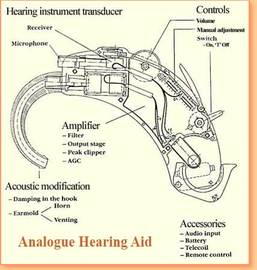 Benefits Of Digital Hearing Aids