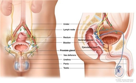 What Cancer Are Men Prone To