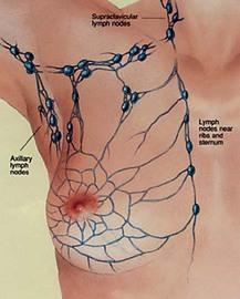 Symptoms Of Lymph Cancer