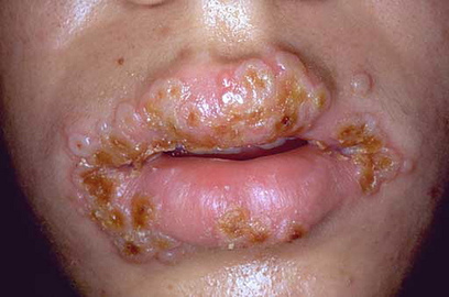 What are the treatments for sexual transmitted disease