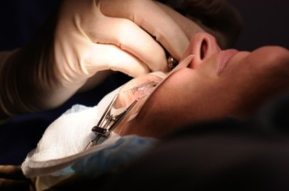 What You Need To Know About Eye Surgery Corrective