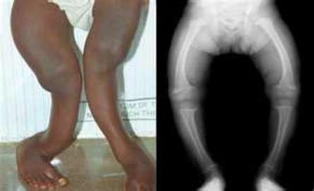About Bone Diseases And Conditions That Affect Children