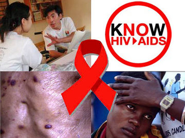 What Caused Aids