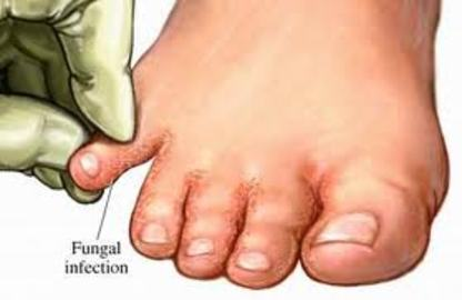 Remedies Of Fungal Diseases	(images)