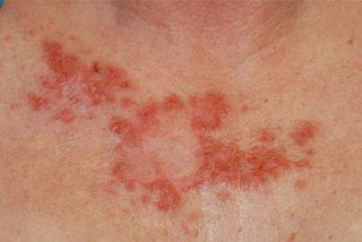 Brief overview of skin cancer diseases