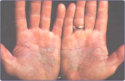 About Yeast Skin Diseases Fungal Infections
