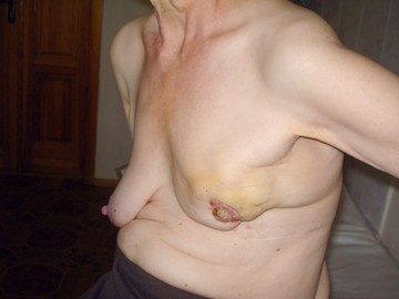 Information About Breast Diseases	(images)