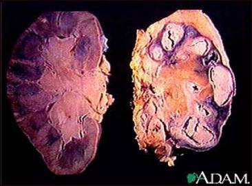 Treatment Of  Tuberculosis Like Diseases!