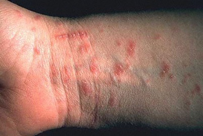 What you need to know about fomite scabies treatment