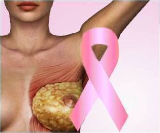 Can Breast Cancer Awareness Save Lives?