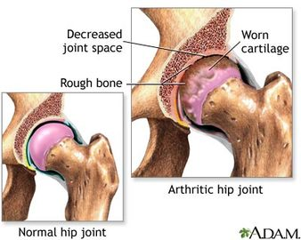Information About Joint Diseases