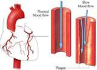 How To Prevent Artery Diseases